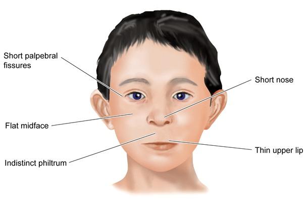 Fetal Alcohol Disorders